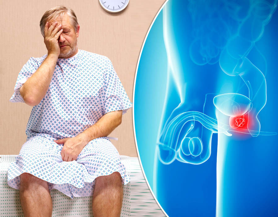 Breakthrough in prostate cancer diagnosis